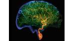 Anpassungsfähigkeit: Nur ein flexibles Gehirn bringt hohe Leistung - Foto: Siemens AG